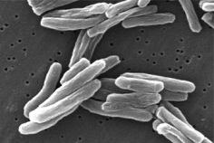 Día Mundial de la Tuberculosis 2018